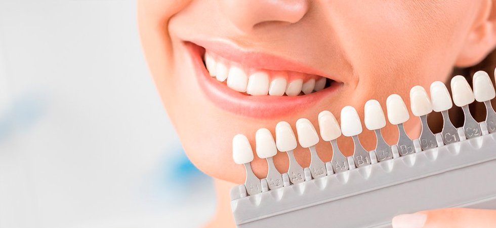 Способы отбеливания зубов - фото